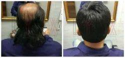 Mens Hair Bonding Service