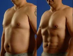 Six Pack Abs Surgery Service
