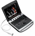 Chison Sonobook 8 Ultrasound  Machine
