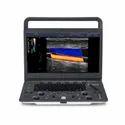 SonoScape E2 Smart Portable Color Doppler System