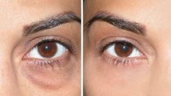10Am To 8Pm Dark Circles Treatment, Vaishali