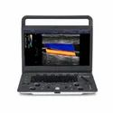 SonoScape 1V Portable Ultrasound Diagnostic System