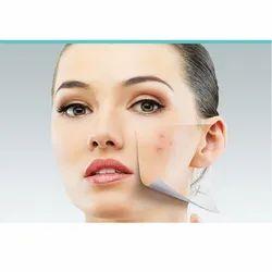 Peel Acne Treatment Services