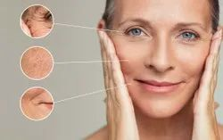 Wrinkle Treatments Services