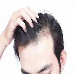 10am To 7pm Unisex Hair Loss Treatment Consultants