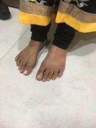 Silicone Toe Prosthesis