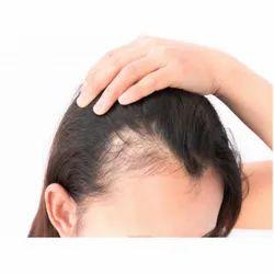 PRP Hair Transformation Service