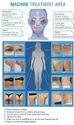 Body Shaping Machine Ultrasound & RF