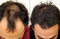 Hair Loss Treatment Services