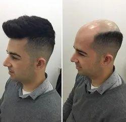 Unisex Non Operative Hair Weaving Service