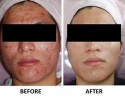 Skin Whitening Pills