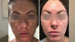 Skin Treatment Solution
