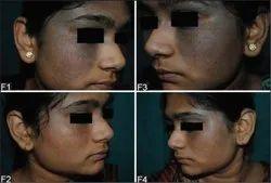 Pigmentation Treatment In chennai Valasaravakkam