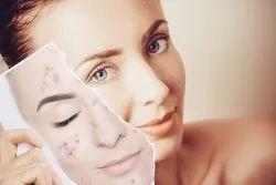 Pimples Treatment In Chennai Alwarpet