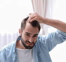 Male hair fall treatment