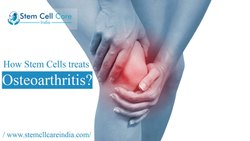 Osteoarthiritis Treatment By Stem Cell