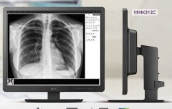 LG 1.3MP Clinical Review Monitor