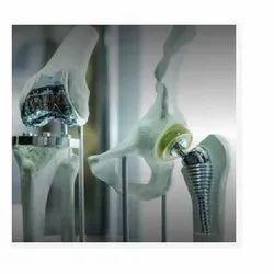 Orthopedic Implants