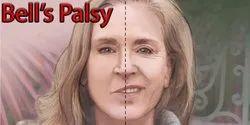 Medicine Bell's Palsy Treatment