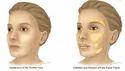 Skin Grafting
