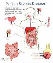 Crohns Disease Treatment Service
