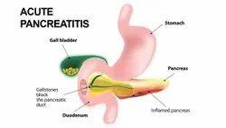 Pancreatic Disease Treatment Services