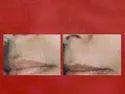 Upper Lip Hair Reduction