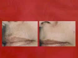 10 Am To 8 Pm Women Upper Lip Hair Reduction
