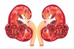 Diet Chart For Kidney Disease.