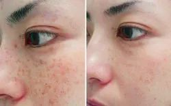 Acne Scars Removal Treatment Service