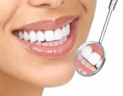 Consultation & Mouth Scanning Services, Complete Teeth