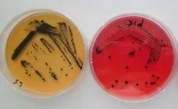 Salmonella Shigella agar  Plate