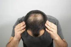 Hair Loss Problem, in Vaishali, 3 Session
