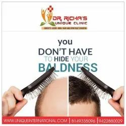 You Don't Have To Hide Your Baldness
