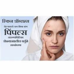 9 To 5pm Skin Pimple Treatment Services, Pan India, 18 Plus