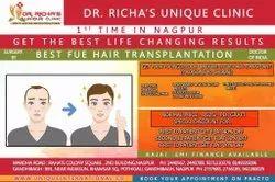 Best Fue Hair Transplantation