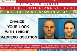 Change Your Look With Unique Baldness Solution
