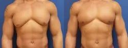 Male Breast Reduction Gynecomastia Surgery