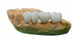Polyamide (PLA) Selective Laser Sintering (SLS) 3D Print Dental Model Service, in On Site
