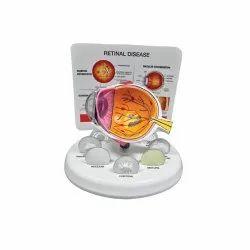 Retinal Disease Eye Model