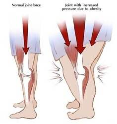 Joint Pain And Obesity Treatment