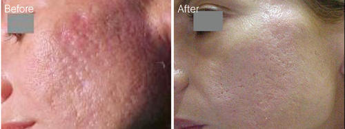 Remarkable ablative ablative facial non rejuvenation something is