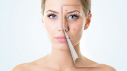 Acne Treatment Service