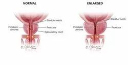 Prostate Cancer Natural/ Herbal Treatment In Global Naturopathy/ Ayurveda Without Side Effects