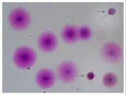 Sperm DNA Fragmentation Test