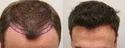 Medical Hair Restoration Service