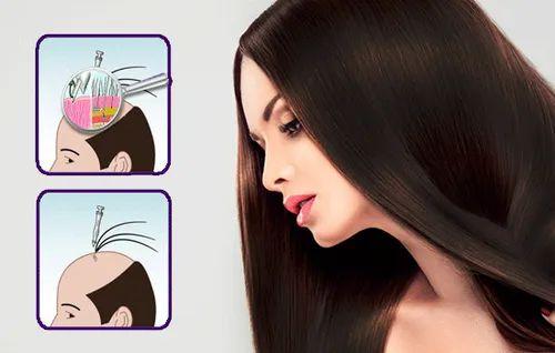 Bio Fiber Hair Transplant Hair Transplantation Nubello Nutrite Hair Transplant Mumbai Id 20591425230