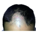 Acupuncture Therapy for Hair Regrowth