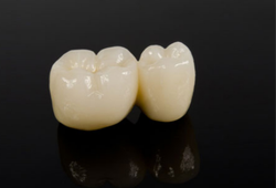 Cercon Dentsply