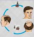 Hair Transplant Treatment Service